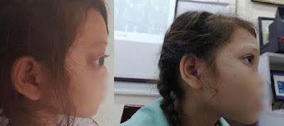 Phẫu thuật thành công bé gái bị u hốc mũi khổng lồ