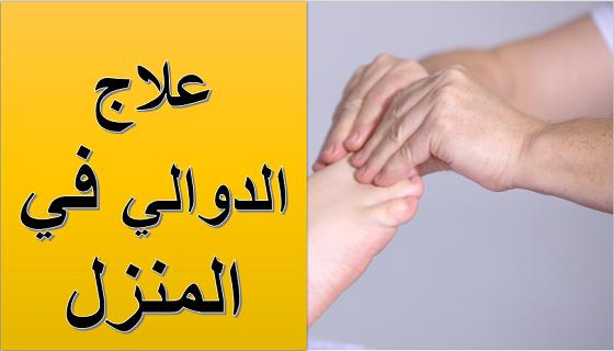 العلاجات المنزلية الطبيعية للتخلص من الدوالي