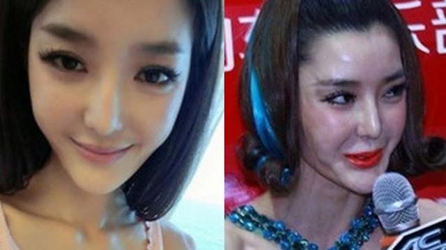 Ngeri! Operasi Plastiknya Kadaluarsa, Wajah Model Tiongkok ini Berubah Jadi Melorot