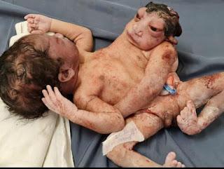 अनाेखा बच्चा: एमसीएच में साेमवार काे 2 सिर और 3 हाथ वाले अनाेखे बच्चे का जन्म
