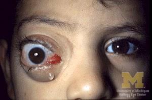 Jenis Penyakit Mata Eksoftalmus