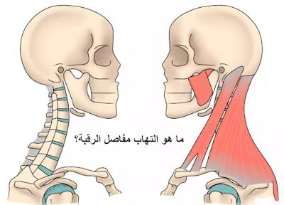 ما هو التهاب مفاصل الرقبة؟ وعلاجه