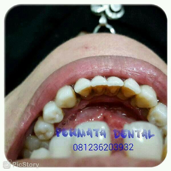 gambar karang gigi gigi karies hitam
