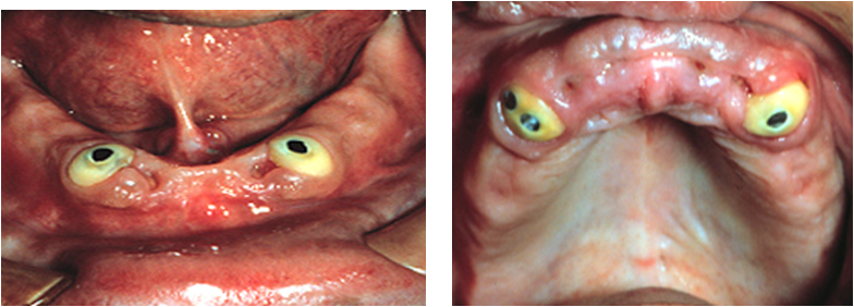 effect of overdenture on teeth stability Clinical research the effect of 2 versus 4 implants on implant stability in mandibular overdentures: a randomized controlled trial wafa'a r.