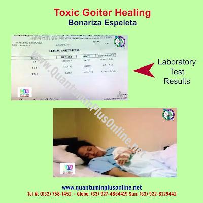 Toxic Goiter: Quantumin Plus Healing