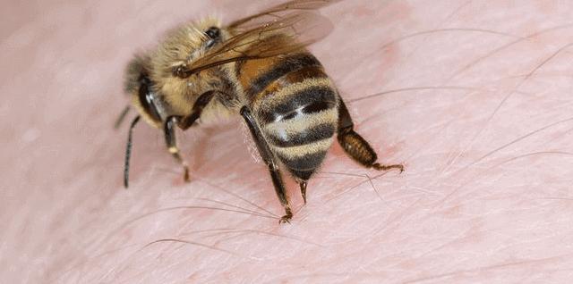 ما علاج لسعات النحل