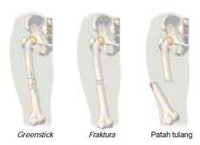 Kelainan dan Penyakit serta Gangguan Fisik Terhadap Tulang, Persendian dan Otot Pada Sistem Gerak Manusia