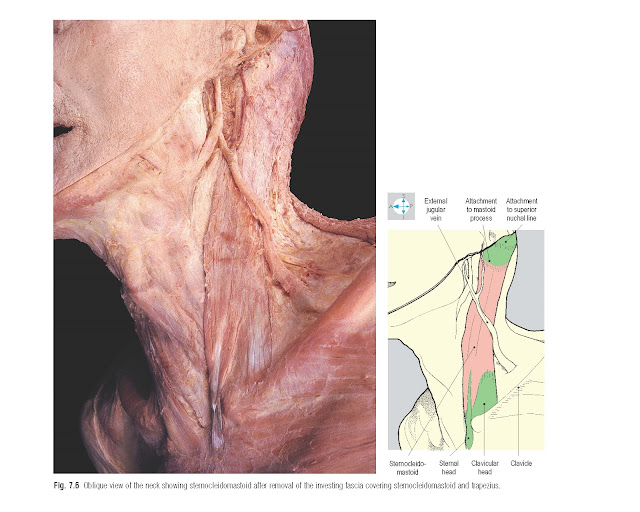 Oblique view of the neck showing sternocleidomastoid after removal of the investing fascia covering sternocleidomastoid and trapezius.