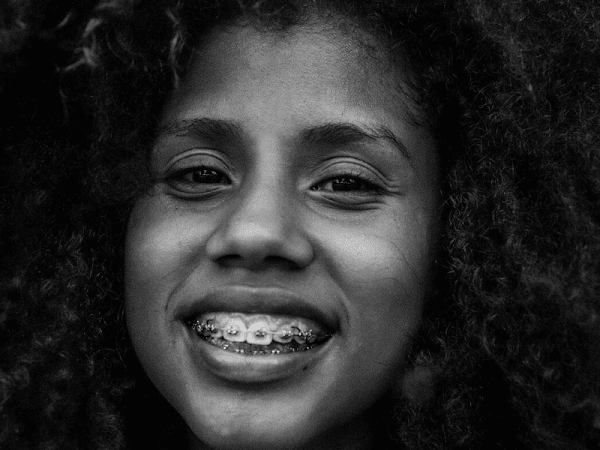 Can You Get Braces As An Adult?