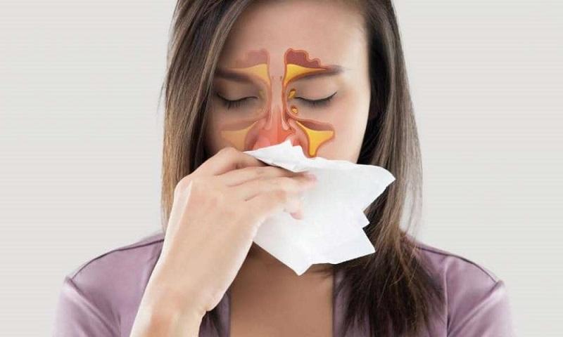 Sinusite Durante a Gravidez: Tipos, Causas e Remédios Caseiros