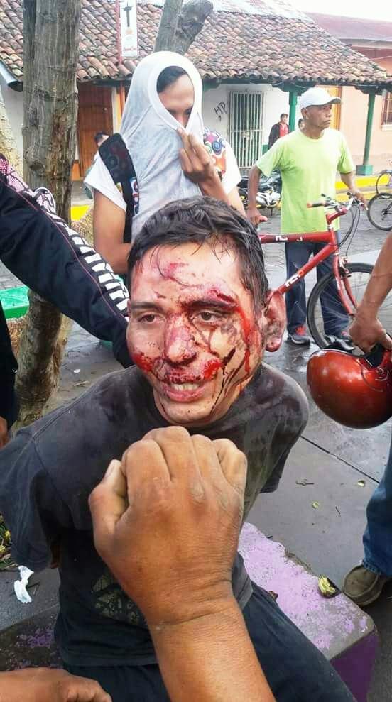 #Nicaragua: Poque la #CIDH, Nunca se han pronunciado por estos Casos, de tortura contra Sandinistas