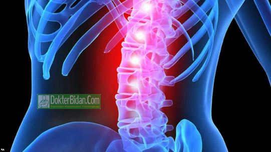 Cedera Saraf Tulang Belakang - Ciri Ciri Penyebab Askep Vitamin Pencegahan Dan Pengobatanya
