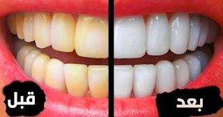 طريقة لتنظيف وتبييض الأسنان