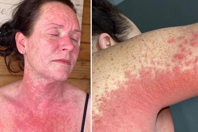 Парикмахерша покрылась страшной сыпью и страдала от невыносимой боли, сделав вакцину от CoViD