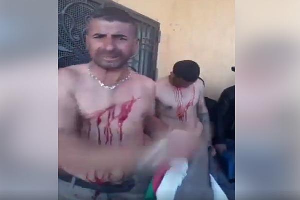 مجموعة من الشباب يقطعون أجسادهم امام مقر وكالة التشغيل