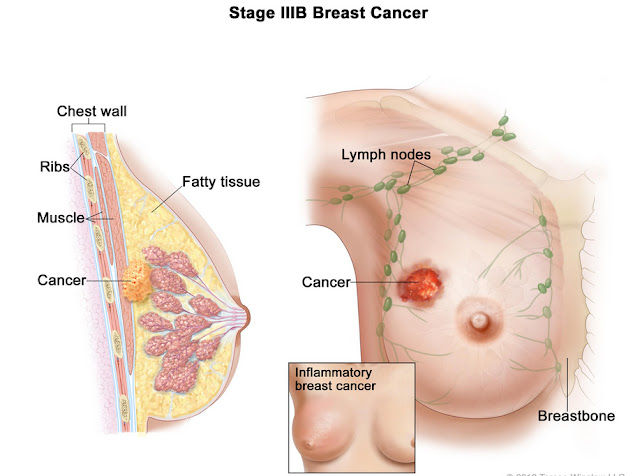 What do breast cancer lumps feel like
