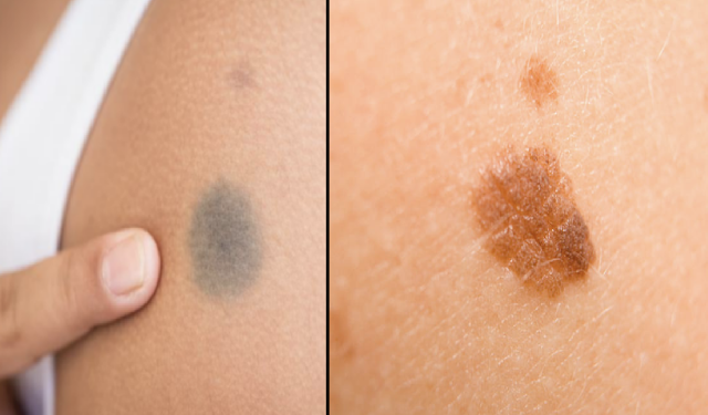 What The Position Of Your Birthmark SAYS About You | Birthmark Meaning