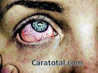 """Cara Menyembuhkan """"Sakit Mata dan Mata Rabun Dengan Herbal Tradisional Bugis"""
