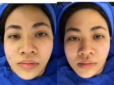 Before and after BTL Exilis Ultra 360 face 2 shy pte ltd