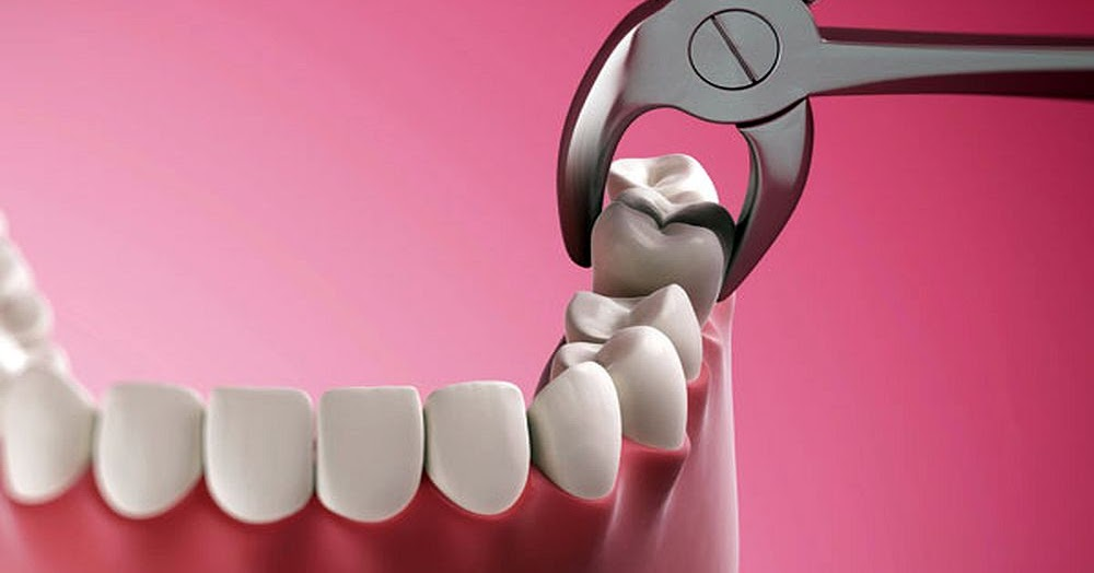 Pain After Tooth Extraction