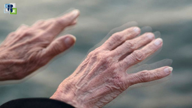 علاج مرض باركنسون بالأمواج فوق الصوتية