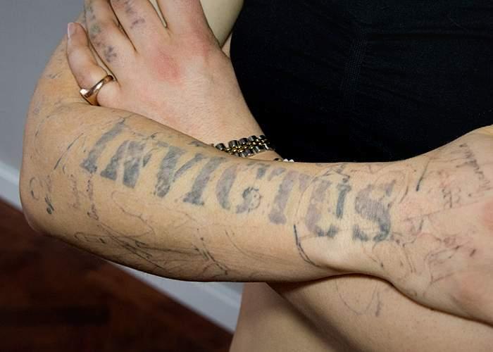 Restos de un tatuaje mal borrado