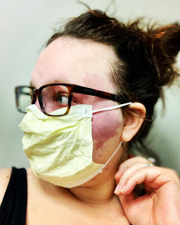 Woman with purple birthmark on her face wears a face mask, looking to her side.