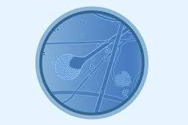 Fungal Disease of Mucormycosis
