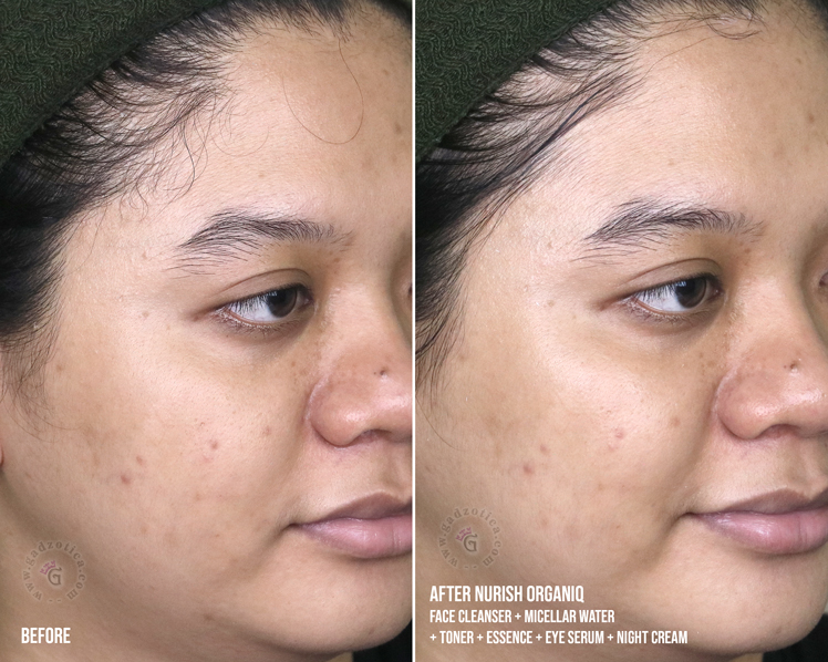 Before After Review Nurish Organiq Brightening