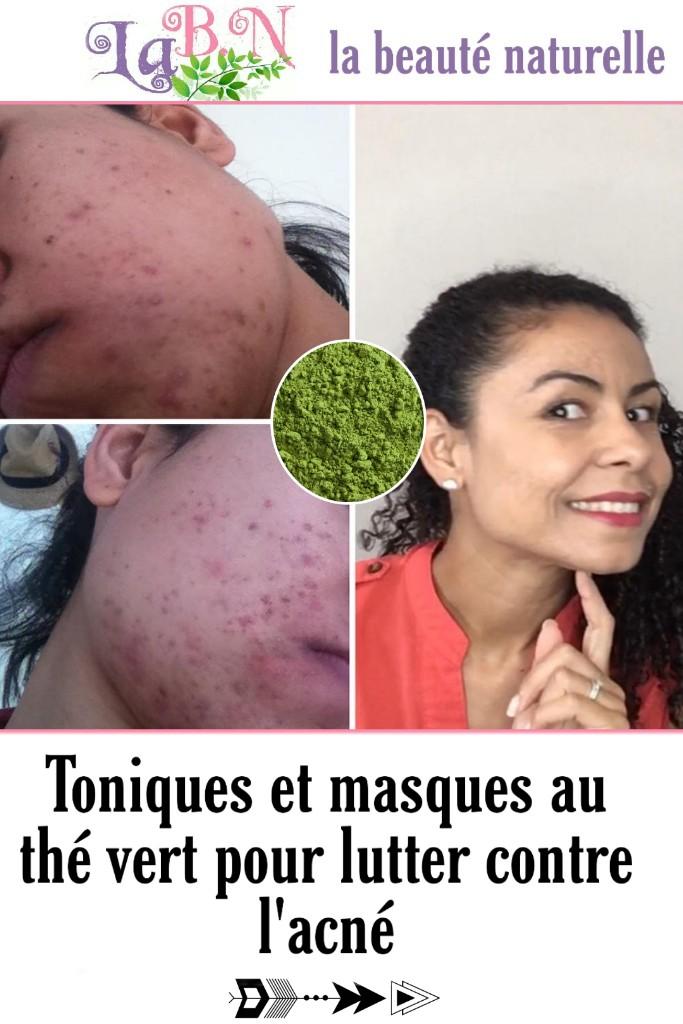 Toniques et masques au thé vert pour lutter contre l'acné