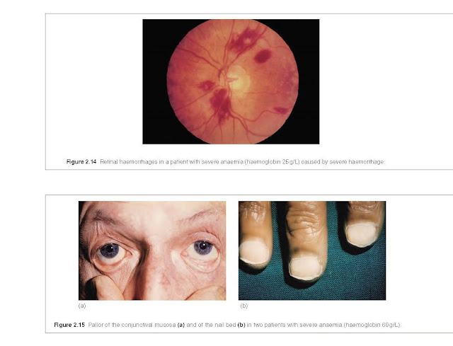 Retinal haemorrhages in a patient with severe anaemia (haemoglobin 25 g/L) caused by severe haemorrhage.
