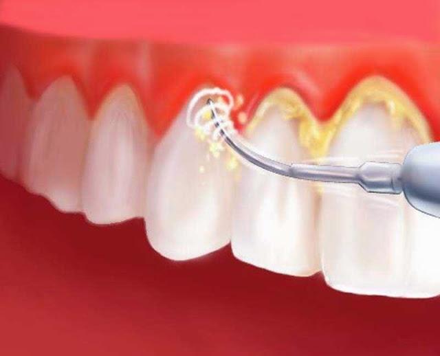 Cara Mudah menghilangkan karang gigi membandel