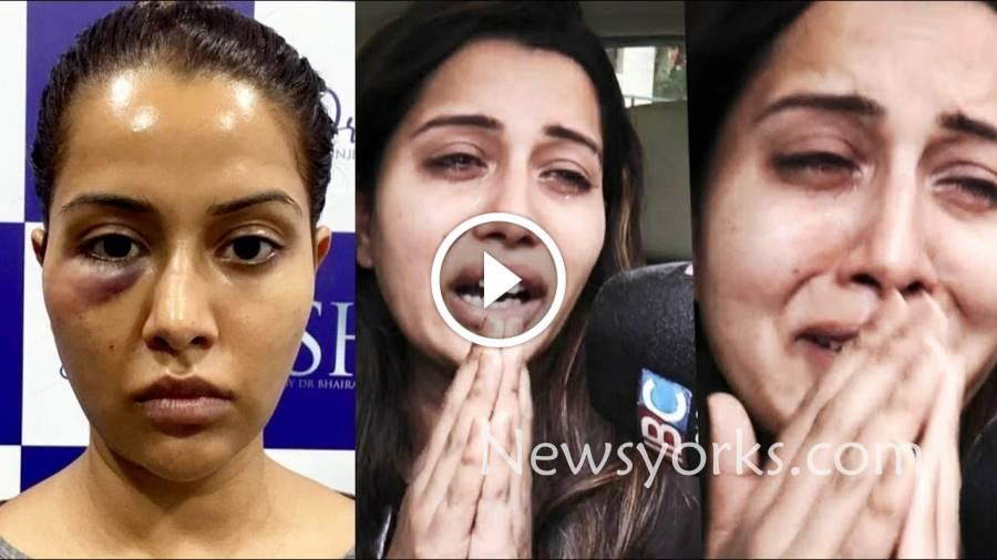 பிக்பாஸ் ரைஸ்சா வில்சன்-க்கு செய்யப்பட்ட அழகு சிகிச்சை விபரீதத்தில் முடிந்தது !!