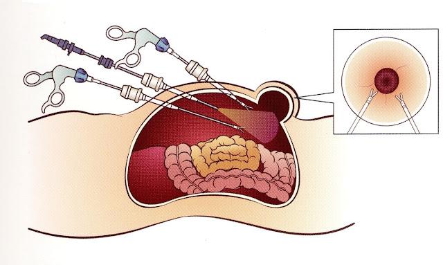 أفضل علاج لجرثومة المعدة عند ظهور اعراضها