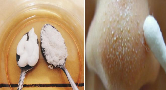 Berkat Menggunakan Garam Campur Pasta Gigi Komedo Bersih Total