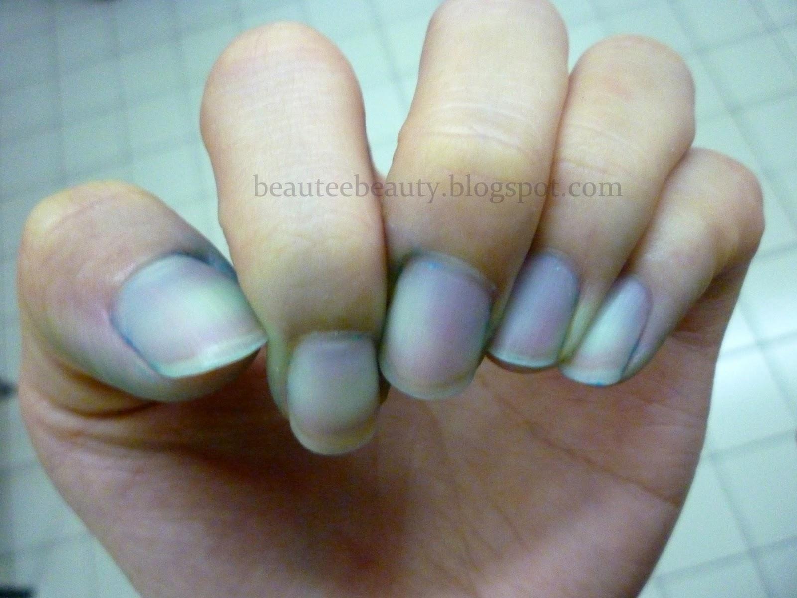 Discolored Nails From Nail Polish Nail Ftempo
