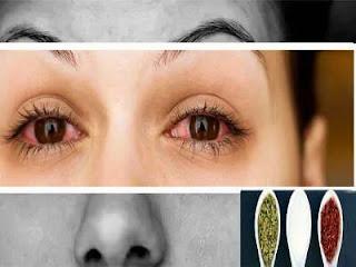 علاج التهاب العين بالاعشاب