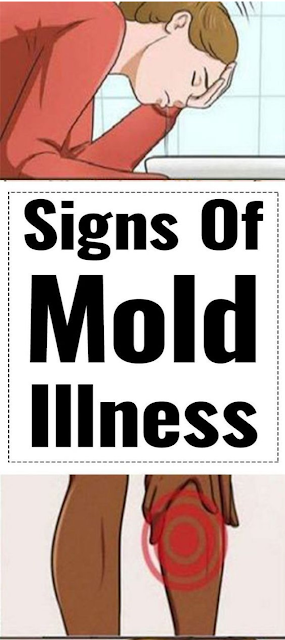 Mold Illness and how to spot them