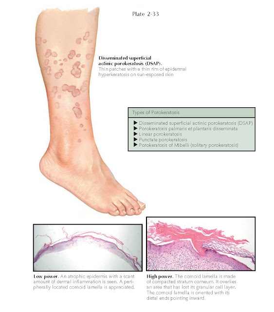 Porokeratosis, Clinical Findings of Porokeratosis, Pathogenesis of Porokeratosis, Histology of Porokeratosis, Treatment of Porokeratosis
