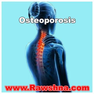 هشاشة العظام أسبابه وعلاجه وكيفية الوقاية منه