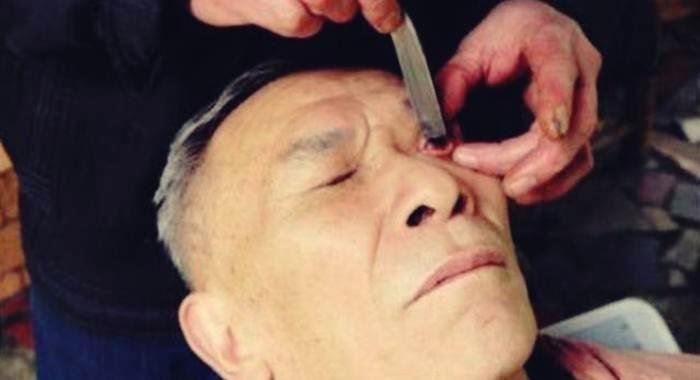 pasien cuci mata dengan pisau