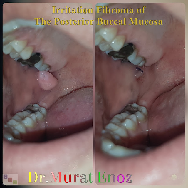 irritation fibroma, irritable fibroma, traumatic fibroma, fibrous hyperplasia, focal fibrous hyperplasia, localized fibrous hyperplasia, fibrous polyps, fibrous nodules, fibroepithelial polyps