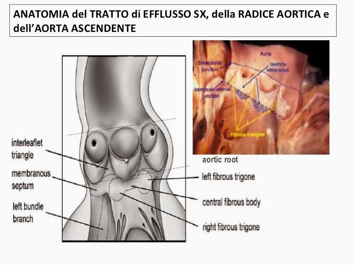 Il ruolo della valvola aortica è quello di impedire che il sangue ritorni  indietro dall aorta al ventricolo sinistro 6d5ec65f224
