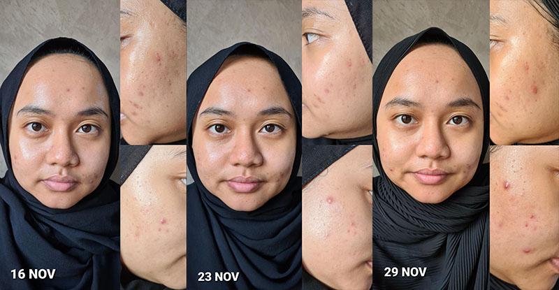 before and after using Neogen Dermalogy Probiotics Relief Cream