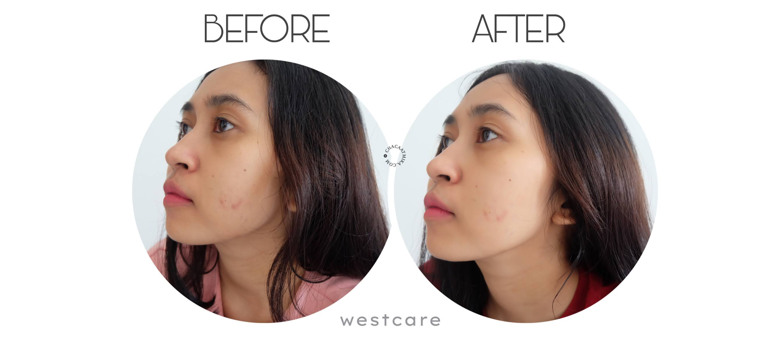 Before After Pemakaian Westcare Skincare