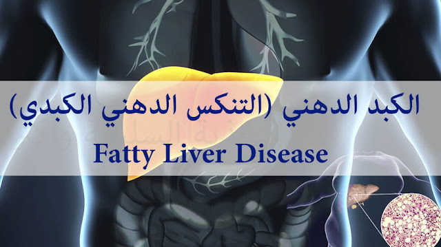الكبد الدهني (التنكس الدهني الكبدي) Fatty Liver ، اسبابه وعلاجه