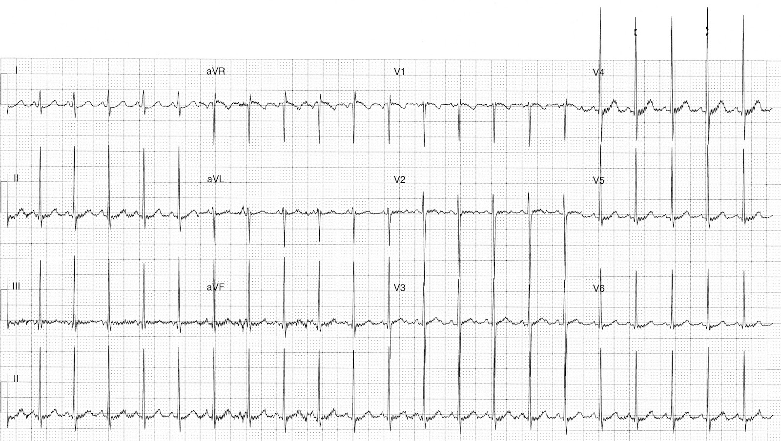 Ecg Of The Week Archives
