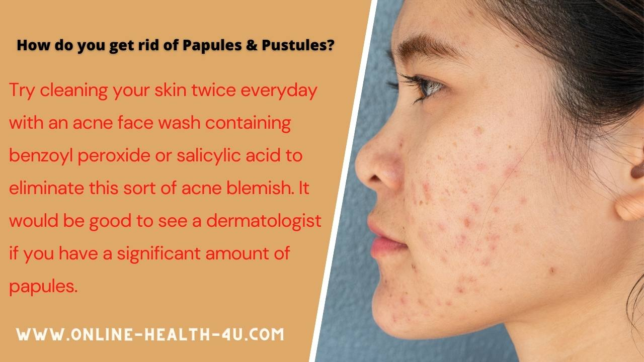 papules-pustules-causes-symptoms-treatment