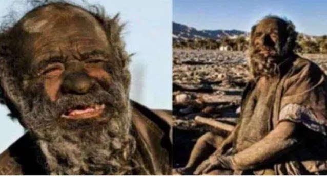 The dirtiest person in history has not bathed for 63 years, you will be shocked if you know the reason