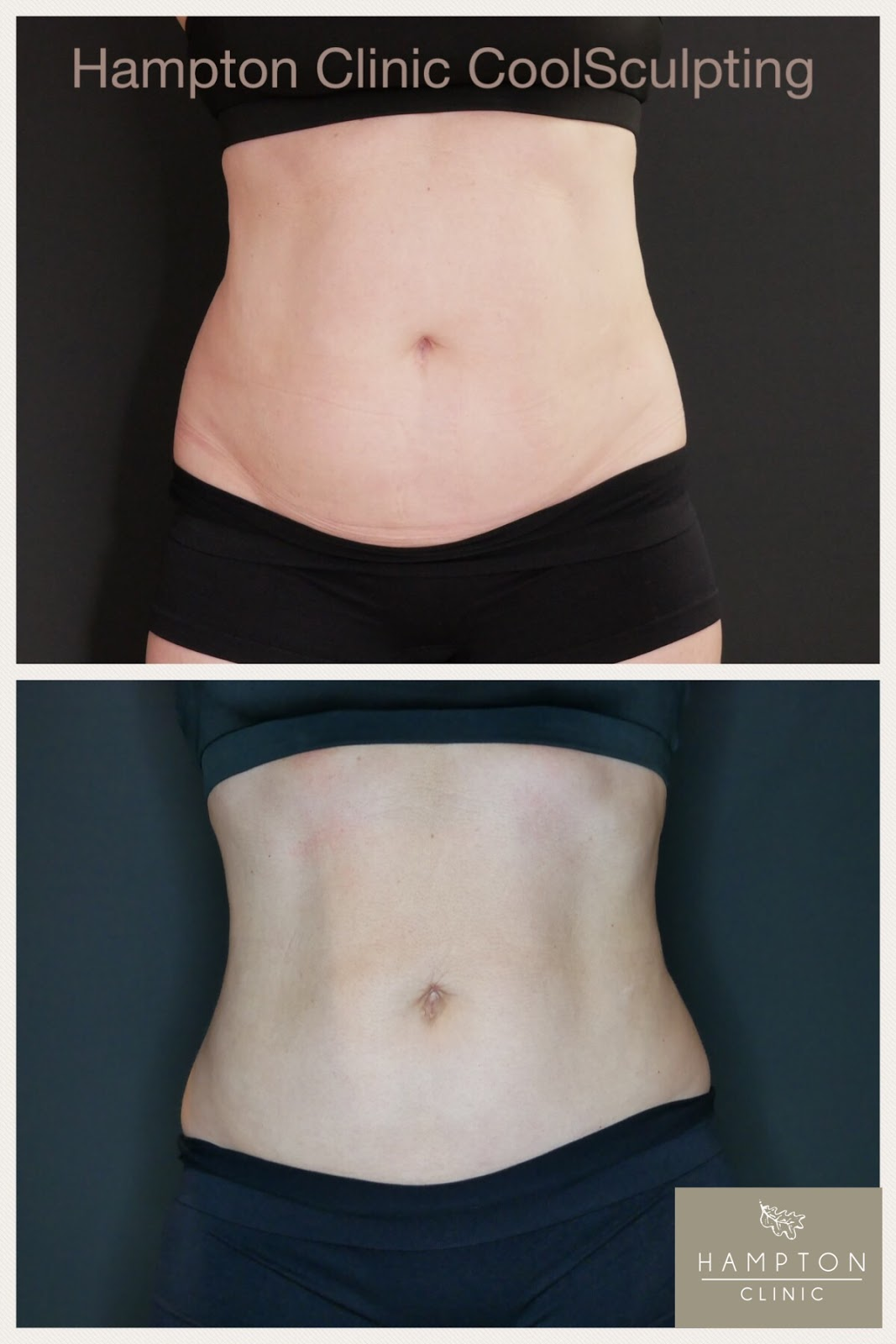 Coolsculpting before and after photo \ front on view